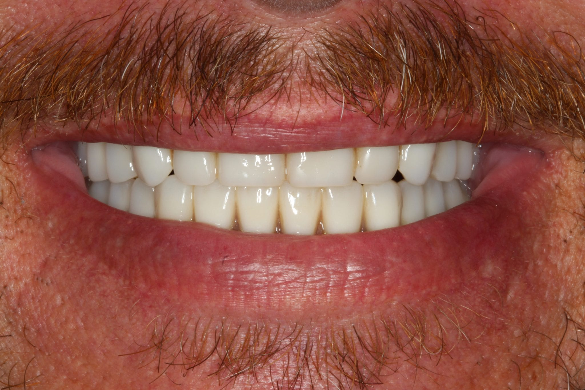 Great looking set of teeth with dental implants